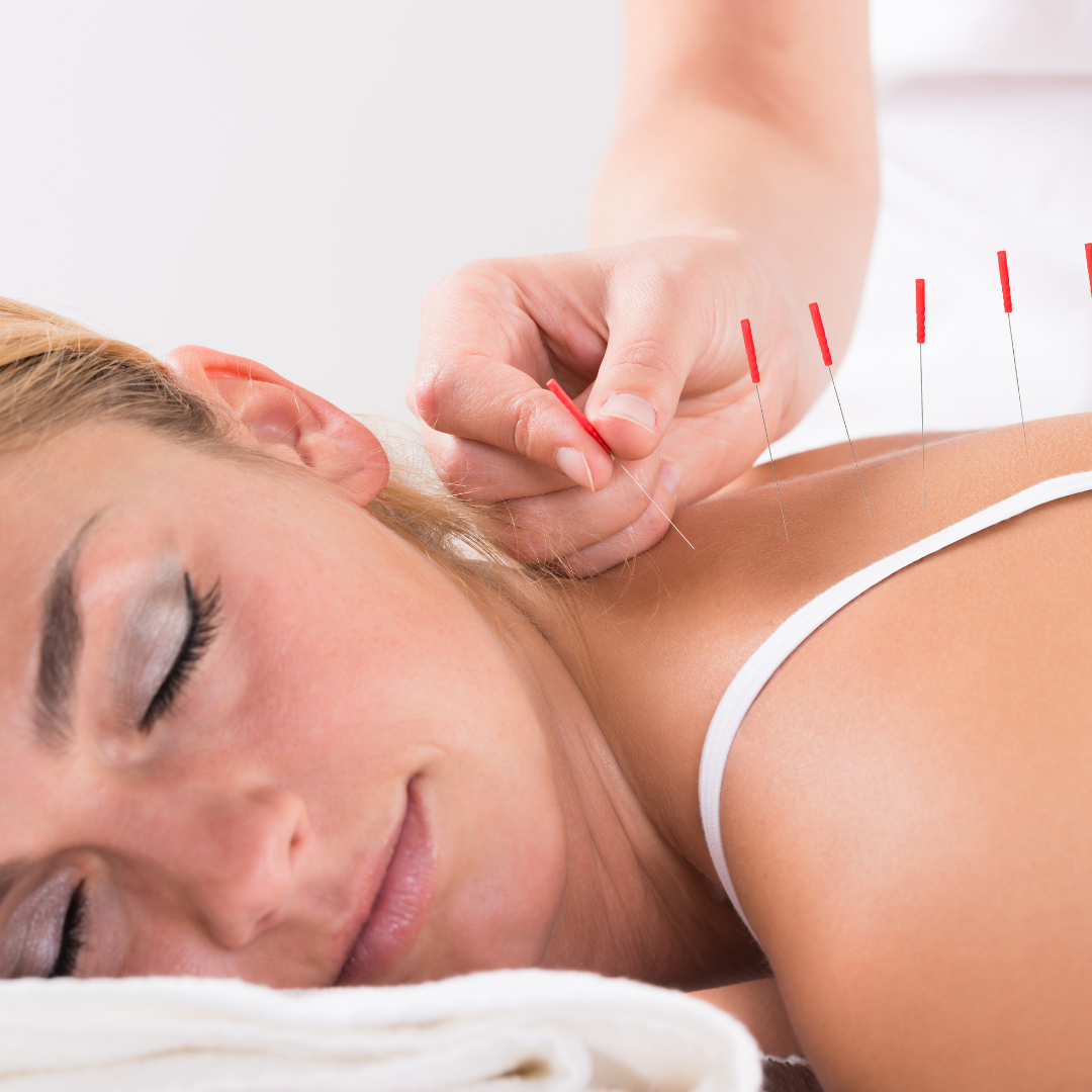 Can Acupuncture Help Us?